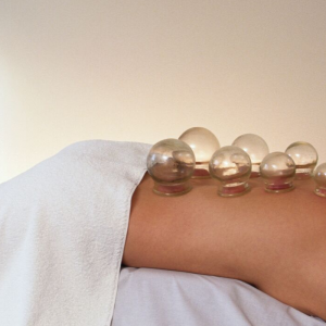 Acupuncture & Cupping